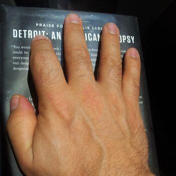 Hand_DetroitAutopsy