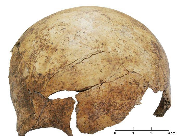 Child skull broken