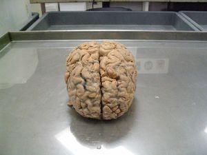 Brain_Michael Horton
