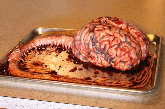 Cake_Dey brainstem