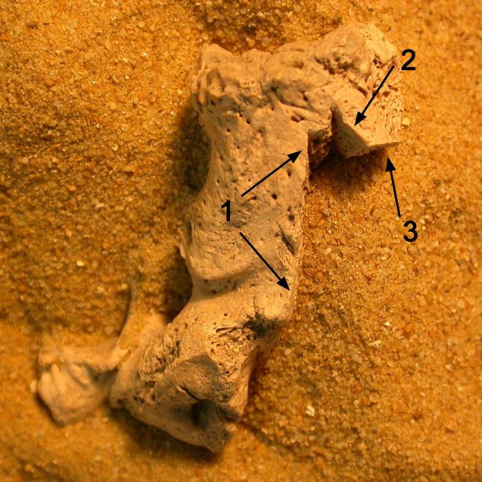 Bone mutilation